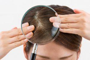 Rimedio perdita capelli